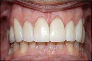 after porcelain veneers 2