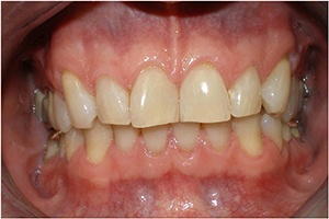 before porcelain veneers 2