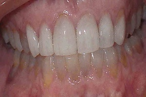 teeth after porcelain veneers