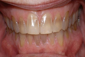 teeth before porcelain veneers