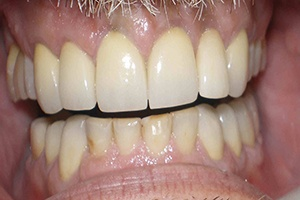 smile after dental implants