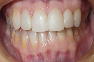 smile after porcelain veneers 2